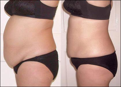 Fat liposuction bra back