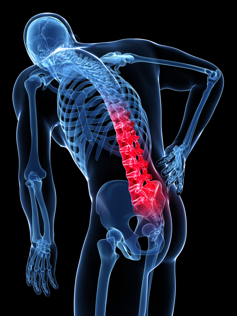 What Is A Slipped Disc America Top 10