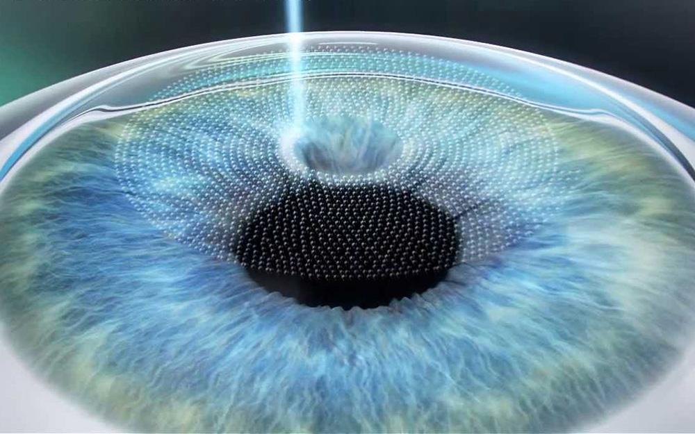 femtosecond-laser