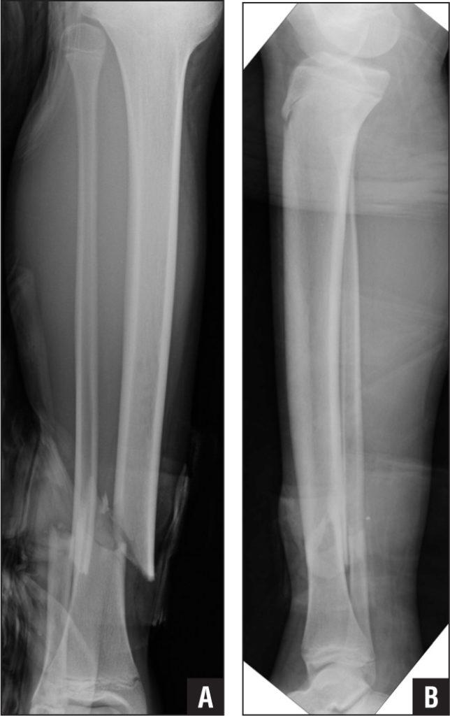 open-fracture