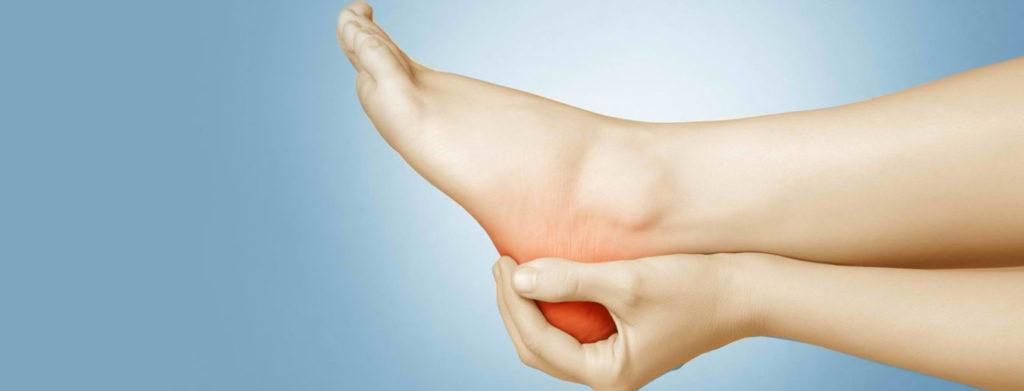 Heel Pain Caused by Plantar Fasciitis